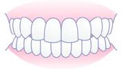 良い歯並び、正しいかみ合わせ