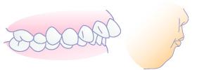骨格性上顎前突(出っ歯)