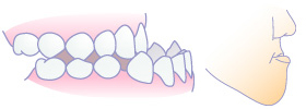 骨格性下顎前突(受け口)